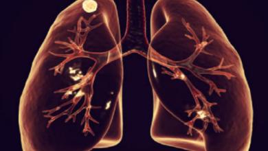 Photo of تغير في الأصابع أو الأظافر ويعاني الأشخاص المصابين بأمراض القلب أو الرئة من هذه التغييرات