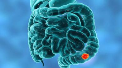 Photo of شعور مريب بعد دخول المرحاض قد يدل على احتمال الإصابة بسرطان الأمعاء