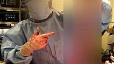 """Photo of تباهوا بفعلتهم على """"الإنستغرام"""" ..شاهد: أطباء يلهون بأعضاء مريض داخل غرفة العمليات"""